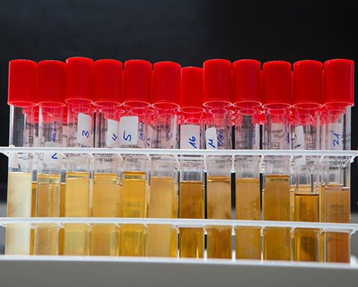 mikrobiologie-img